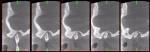 artritis_reumatoidea_juv_04.jpg