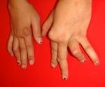 artritis_reumatoidea_juv_13.jpg