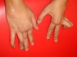 artritis_reumatoidea_juv_14.jpg