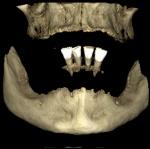 fractura_alveolo_dentaria_12.jpg