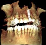 localizacion_implante_4.jpg